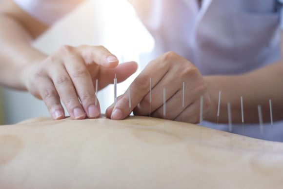 Is Acupuncture An Effective Scar Tissue Treatment?